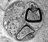 Transmission electron micrograph of a regenerating unit depicting Schwann cell nuclei, unmyelinated and myelinated fibres.